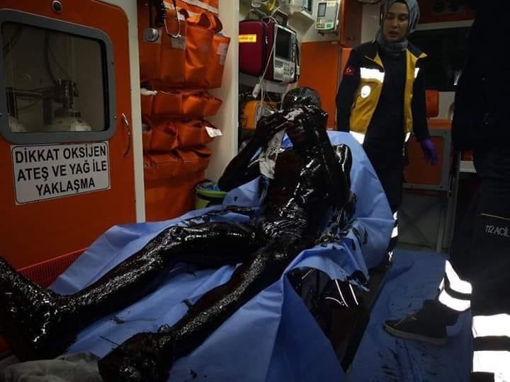 Olay sonrası Özgür Efe Şire'nin yağa bulanmış halde sağlık ekiplerince sağlık kontrolü yapıldı